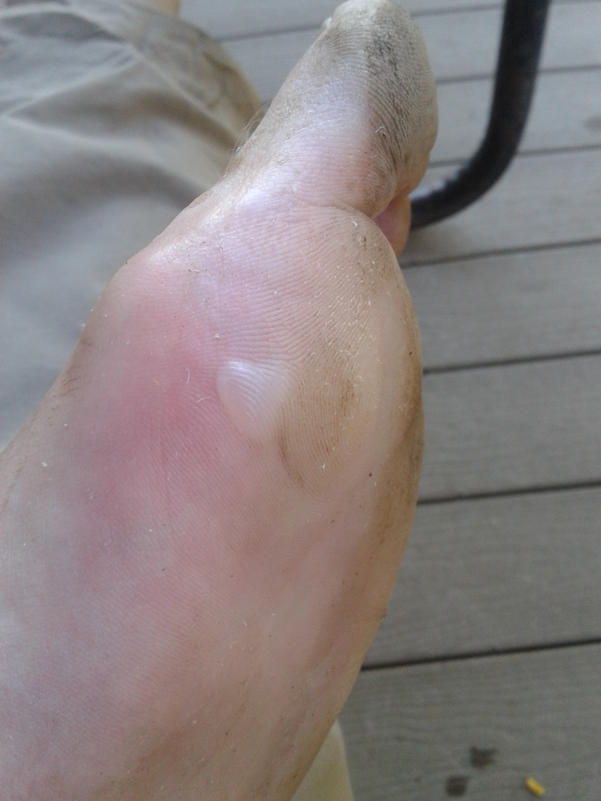 how to keep running with a blister